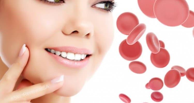Skin Renewal Vampire Facial