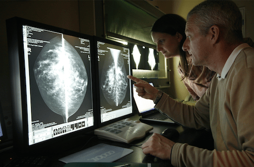 WHAT ARE THE VARIOUS STAGES OF BREAST CANCER?