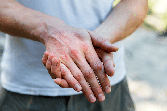 ARE YOU SUFFERING FROM ITCHY, INFLAMED SKIN AND #SCRATCHING FOR ANSWERS?