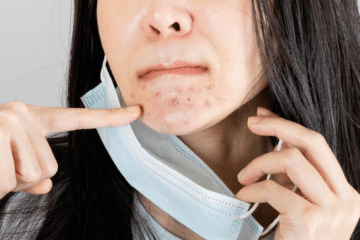 HOW TO AVOID AND TREAT MASKNE (MASK ACNE) BREAKOUTS